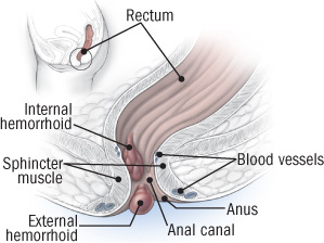 Rectal discharge - Wikipedia