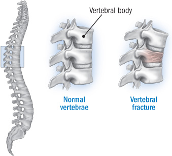 Treating osteoporotic fractures of the spine harvard health anatomy of a vertebral fracture sciox Choice Image