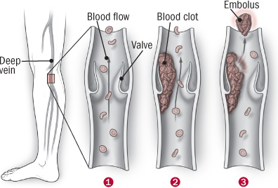 Deep-vein trouble