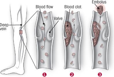 On the alert for deep-vein blood clots - Harvard Health