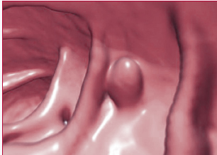 3D Virtual Colonoscopy
