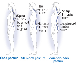 4 Ways To Turn Good Posture Into Less Back Pain Harvard