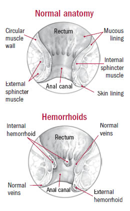 Normal anatomy & Hemorrhoids