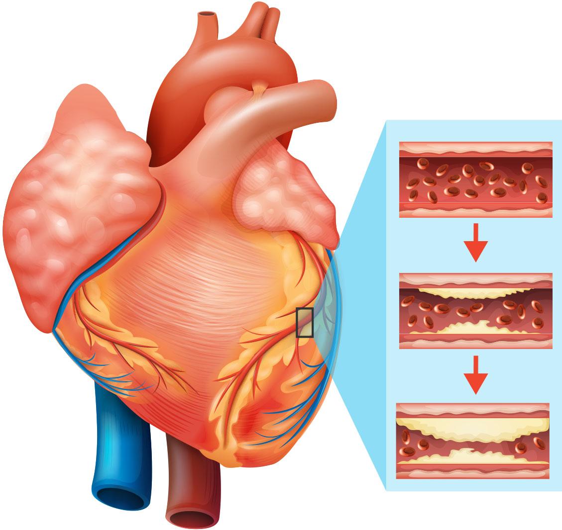 Heart Health Center