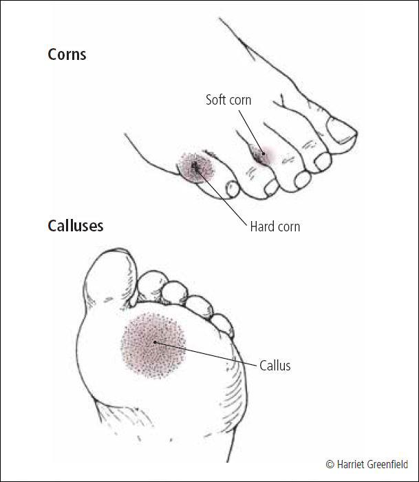 Calluses And Corns Harvard Health