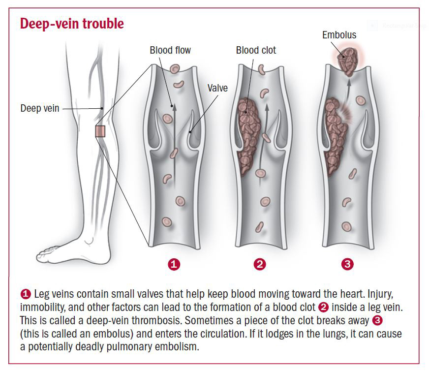 deep vein thrombosis - harvard health, Cephalic Vein