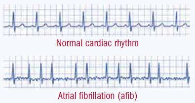 Image result for afib ecg