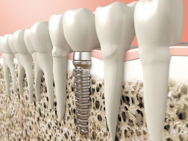 dental health implant teeth