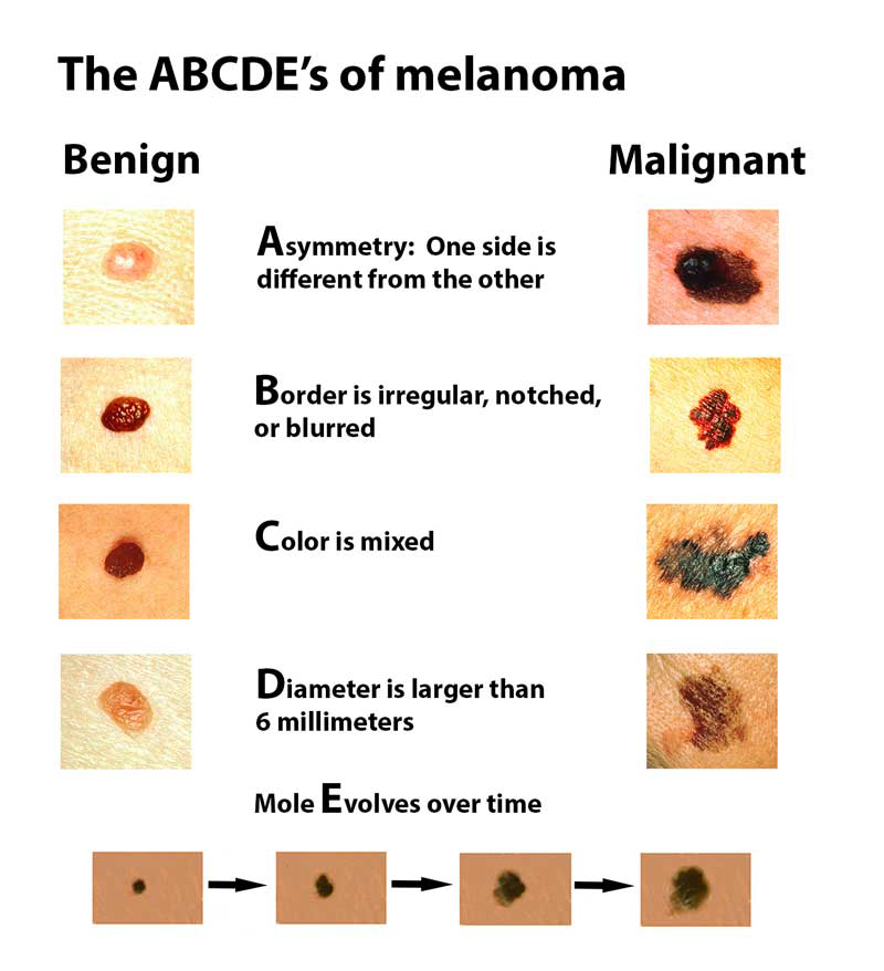 melanoma - harvard health, Human Body