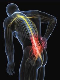 St. Louis Sciatica Pain Relief - Citrin Chiropractic Center