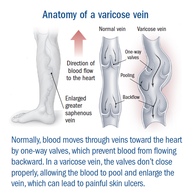 Varicose Veins - Harvard Health