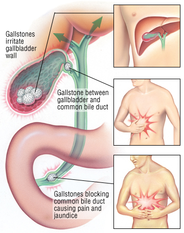 gallstones - harvard health, Human Body