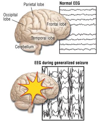 generalized seizures (grand mal seizures) - harvard health, Skeleton
