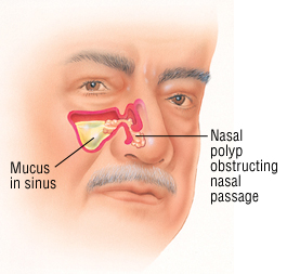 does fluticasone nasal spray have steroids