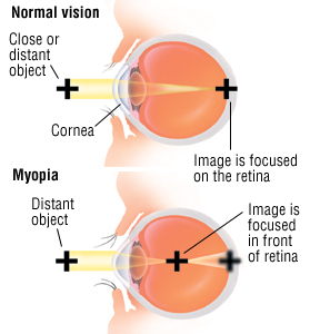 myopia of learning Definition of myopia written for english language learners from the merriam-webster learner's dictionary with audio pronunciations, usage examples, and count/noncount noun labels.