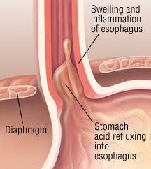 Can Food Get Stuck In Your Esophagus