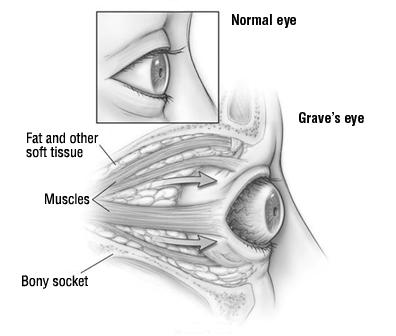 Graves' Eye Disease (Graves' Ophthalmopathy) - Harvard Health