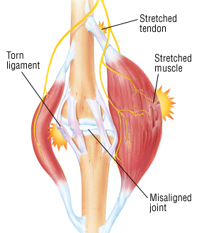 Back Strain From Car Accident