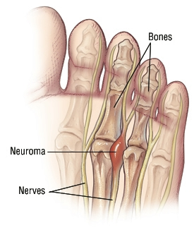Damage To Nerves In Toe From Shoe