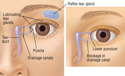 Eye tear duct infection cipro