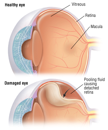 detached retina - harvard health, Skeleton
