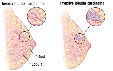 What is the lobules breast cancer