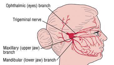trigeminal neuralgia (tic douloureux) - harvard health, Skeleton