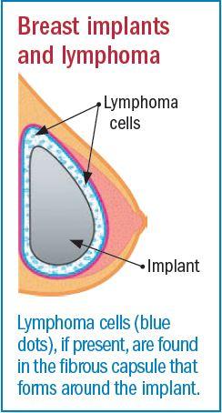 Breast implants linked to rare lymphoma - Harvard Health