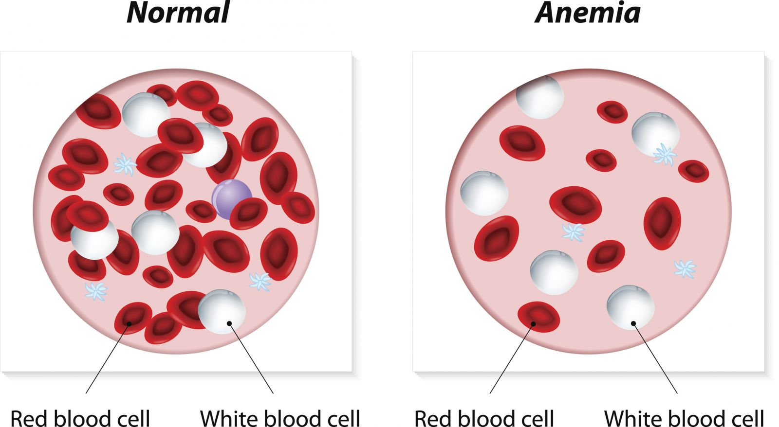 Anemia Overview - Harvard Heal...
