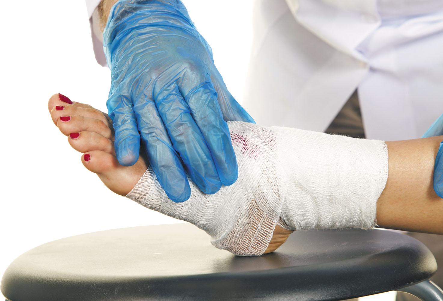mengobati luka diabetes dengan perban
