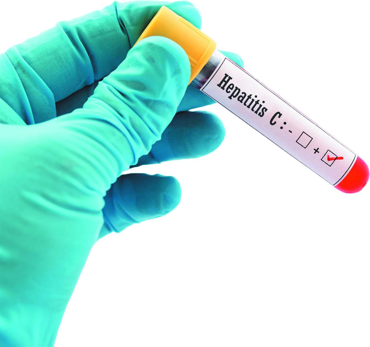 Hepatitis C: Still a major risk for baby boomers - Harvard ...