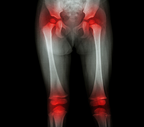 how to tell if you have arthritis in your knee